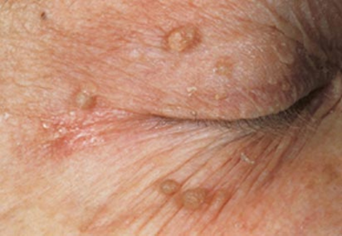 Skin Tags On Eyes