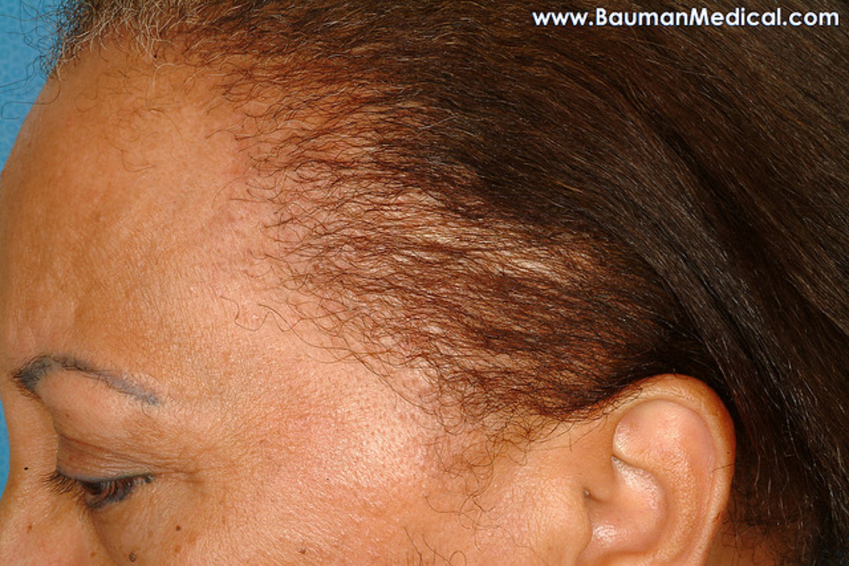 example of thinning hair