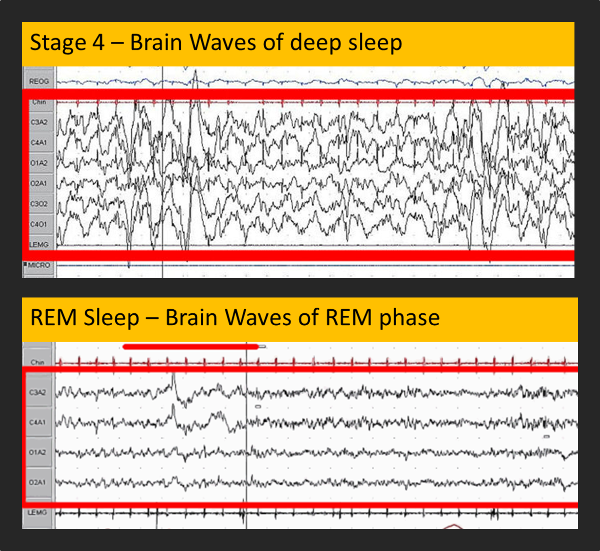 30 seconds of EEG data for patients in Stage 4 sleep (top) and REM sleep (bottom)