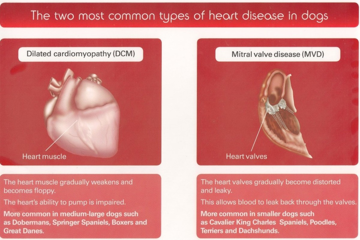 Graphic illustration of Mitral Valve Disease and Dilated Cardiomyopathy.