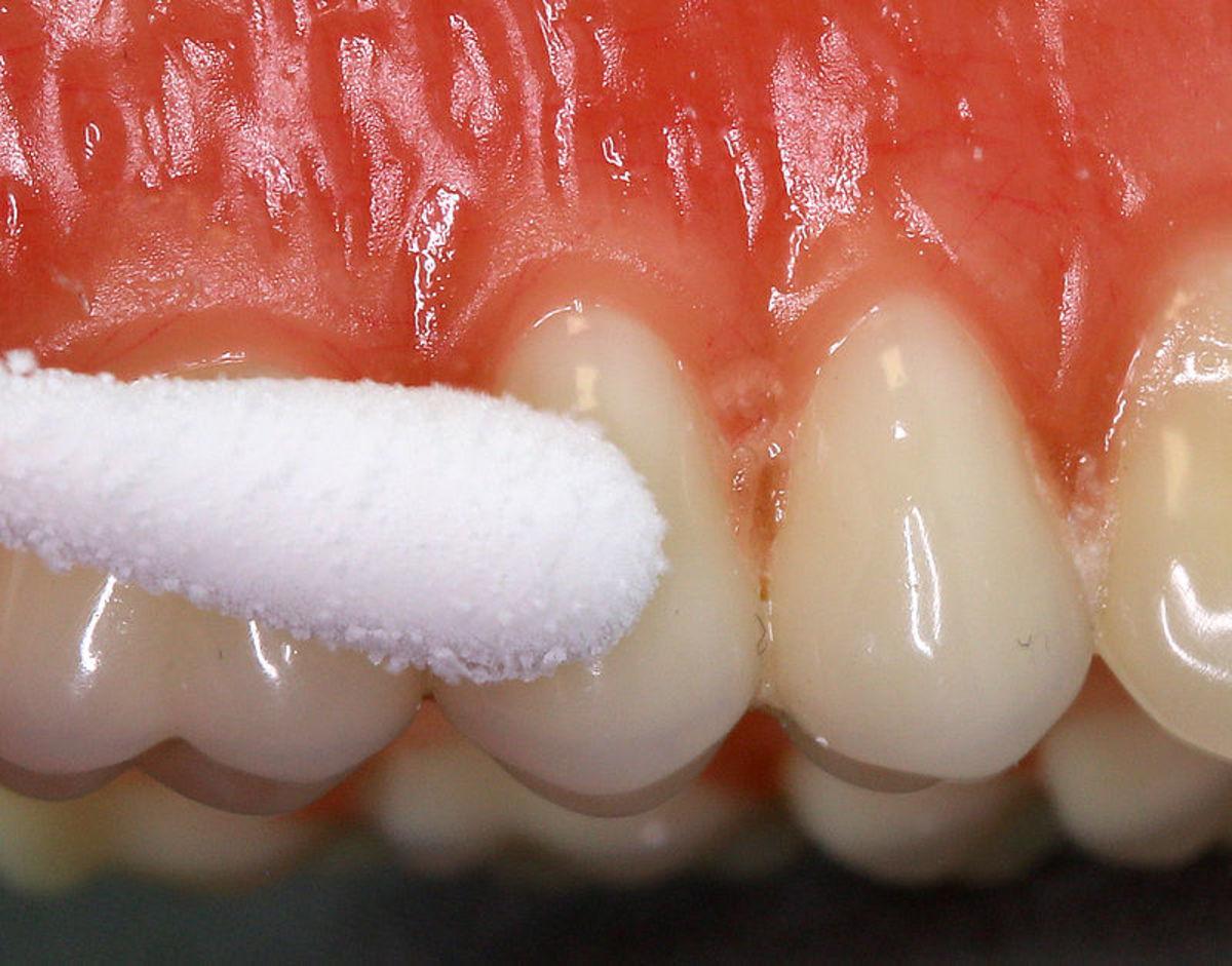 Oral hygiene is must for healthy teeth