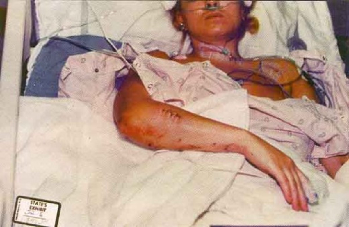 Self-inflicted? In hospital photo. Main artery barely missed in her neck. Two jurors swear they never saw these photos.