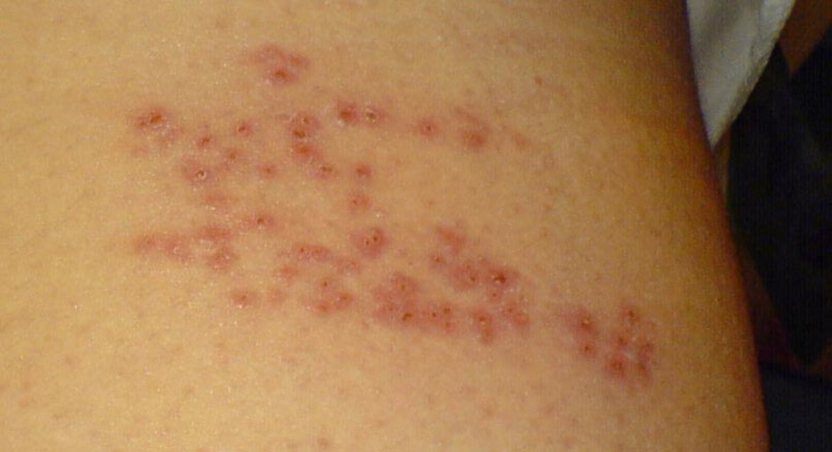 Shingles: Symptoms, Signs, Natural Remedies and Treatments
