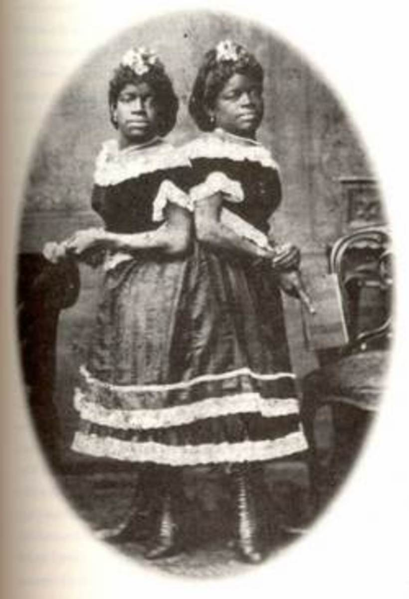 10-congenital-twins-from-history-you-know-nothing-about