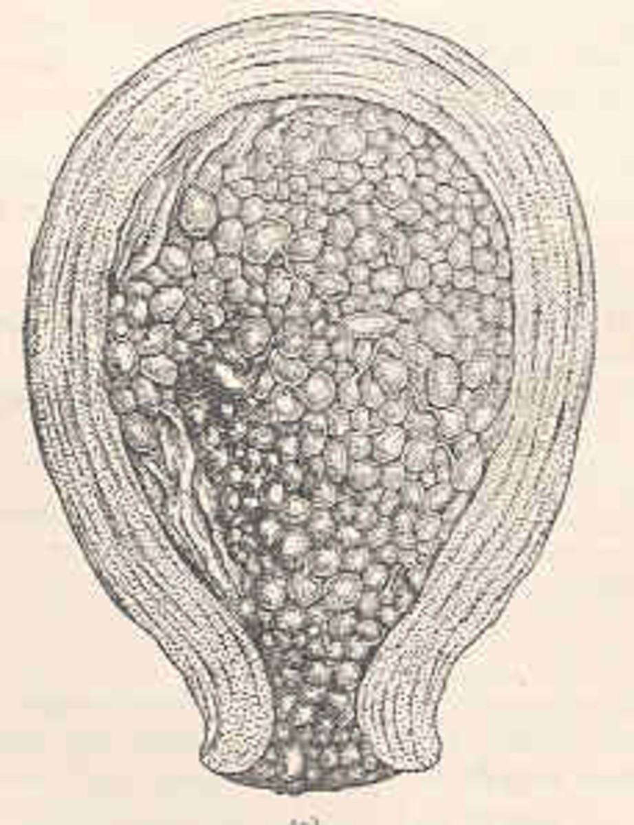 Molar Pregnancy, Complete or Partial