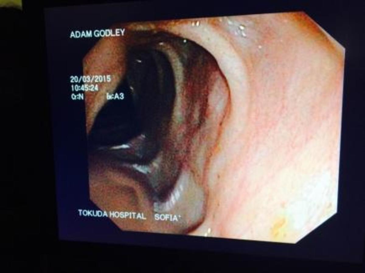 Pillcam image of my son's diseased terminal ileum