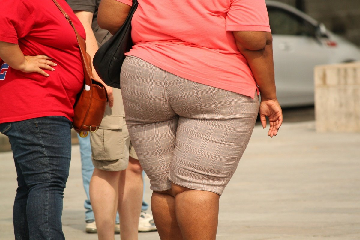 This is what an obese or overweight person looks like which is caused by a variety of factors including bad dietary choices & a lack of exercise.