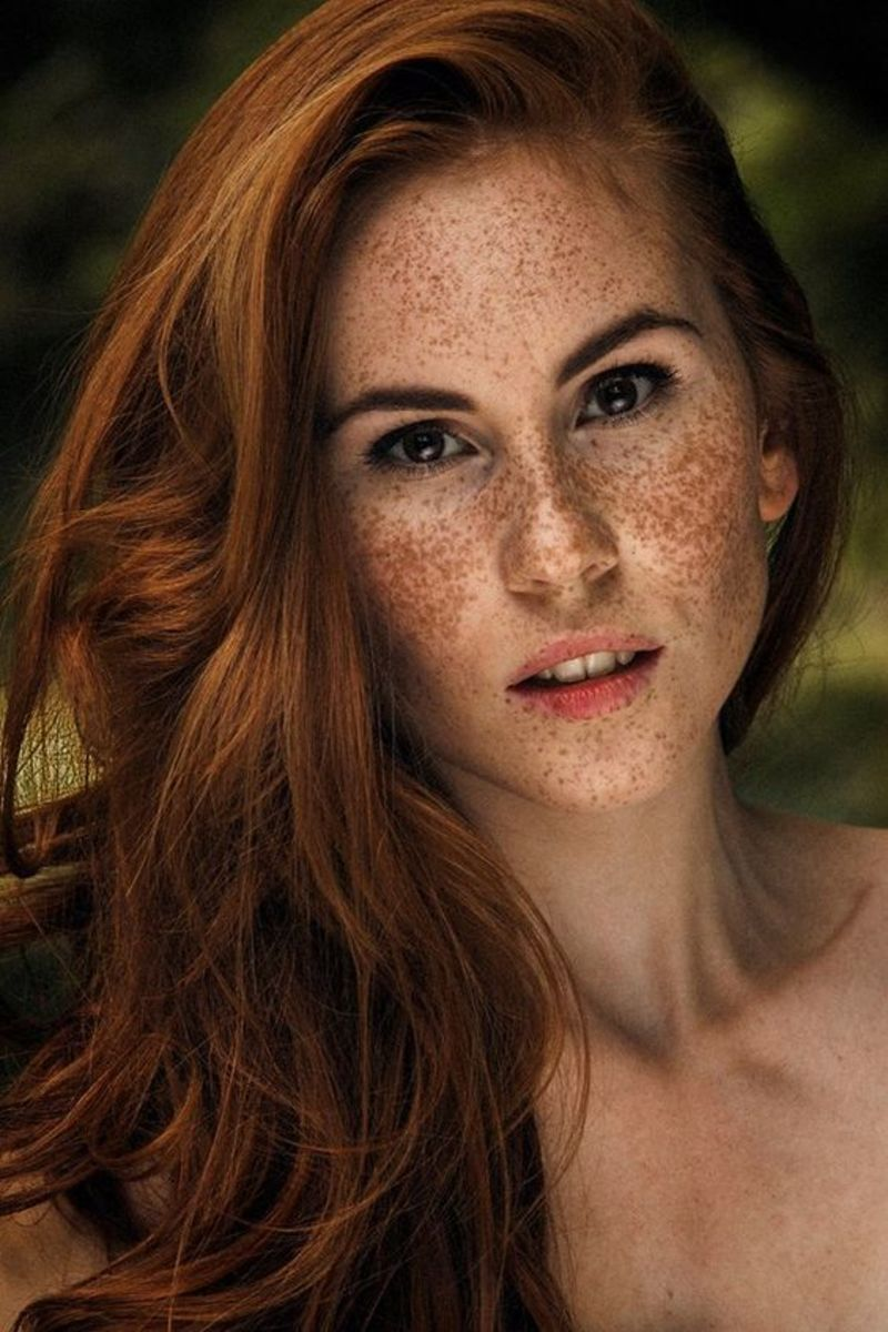 Martina Vyberciova is a Slovakian print model and her freckled face has been no deterrent to her beauty or her success.