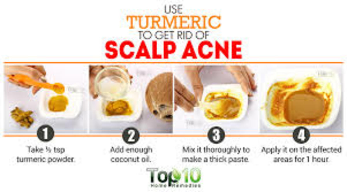 9-home-remedies-to-treat-and-get-rid-of-pimples