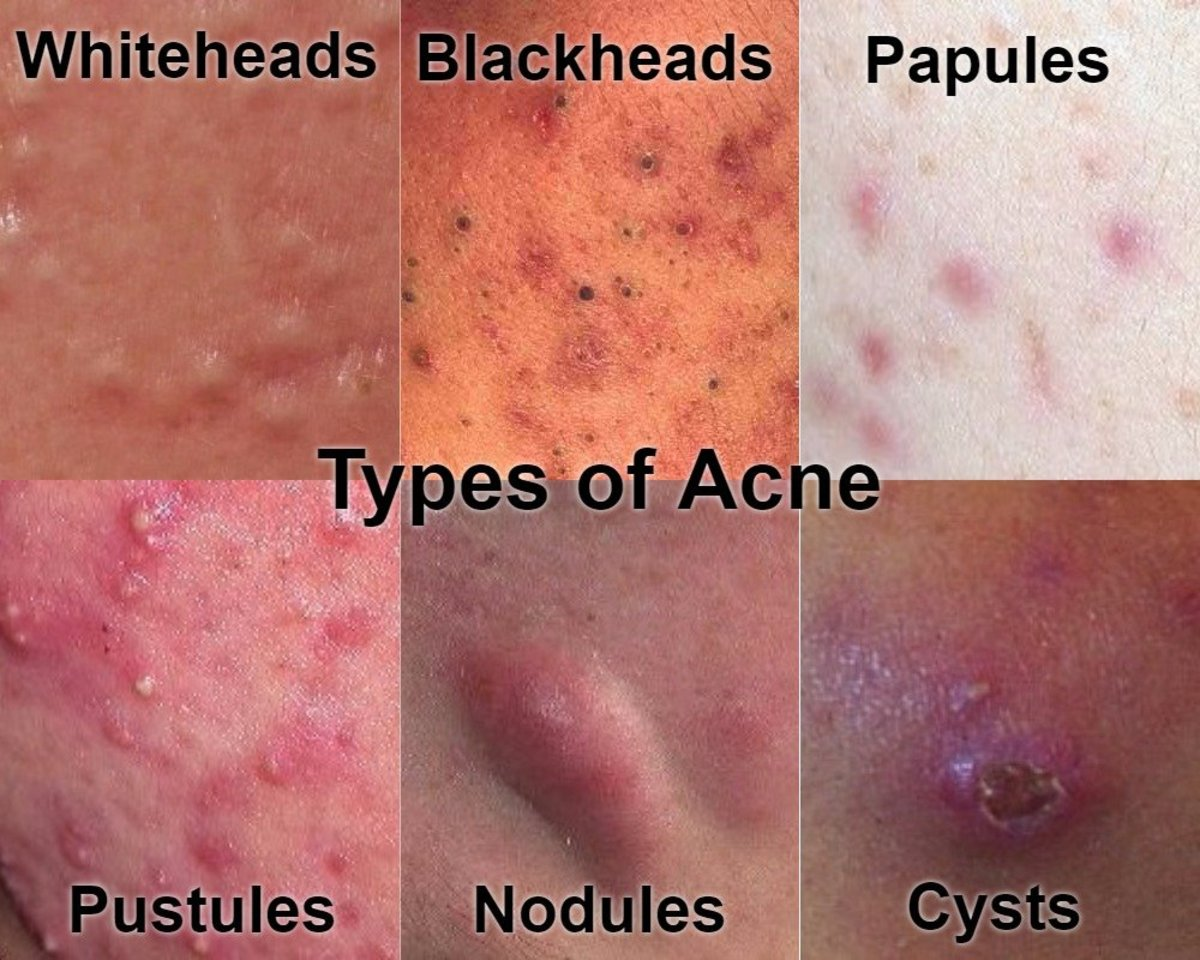 5 Home Remedies to Treat and Get Rid of Pimples