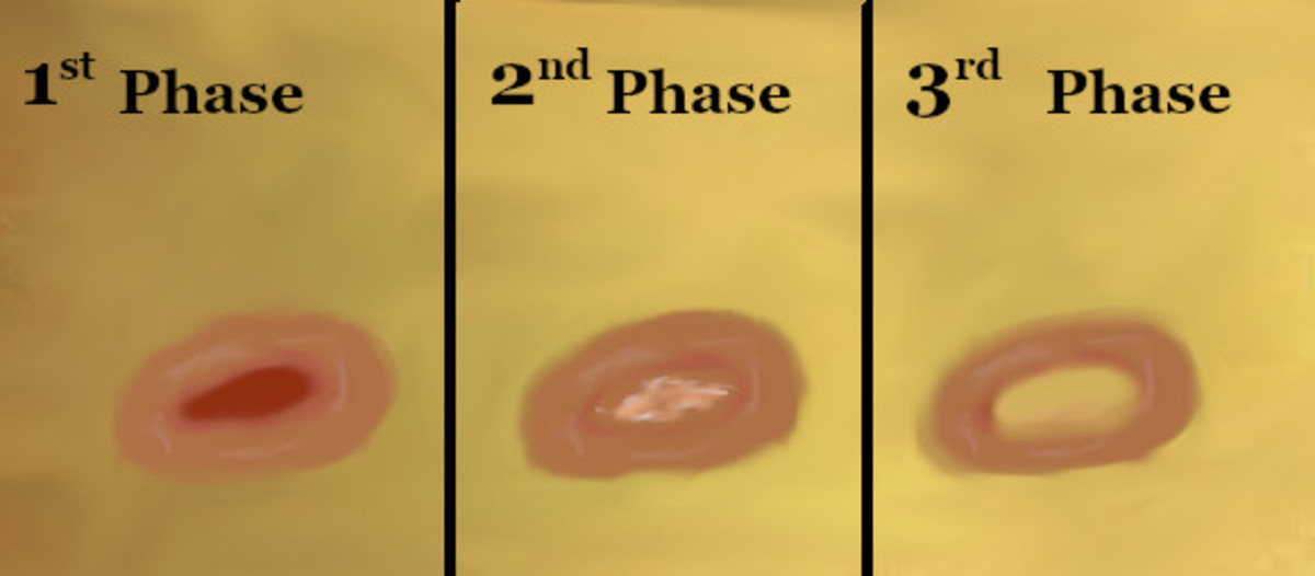 Phases of my Basal Cell