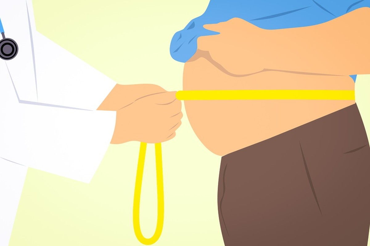 Obesity leads to Fatigue and Less-productive Life