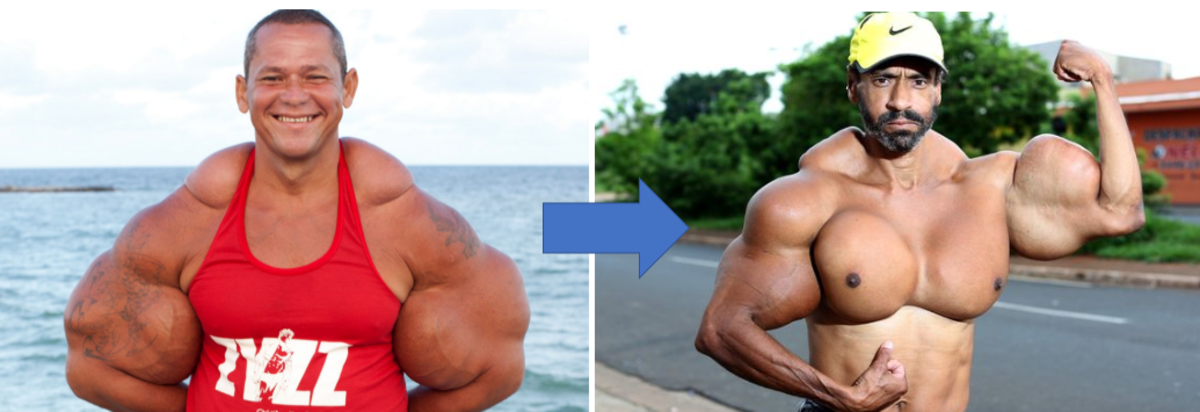 7 Freakish Bodybuilders Who Bulked-Up the Wrong Way