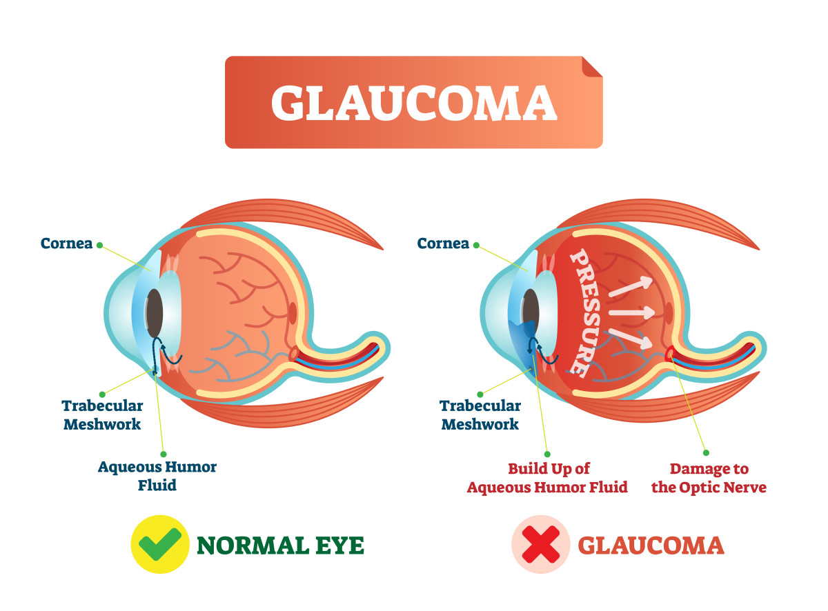 Glaucoma and the normal eye