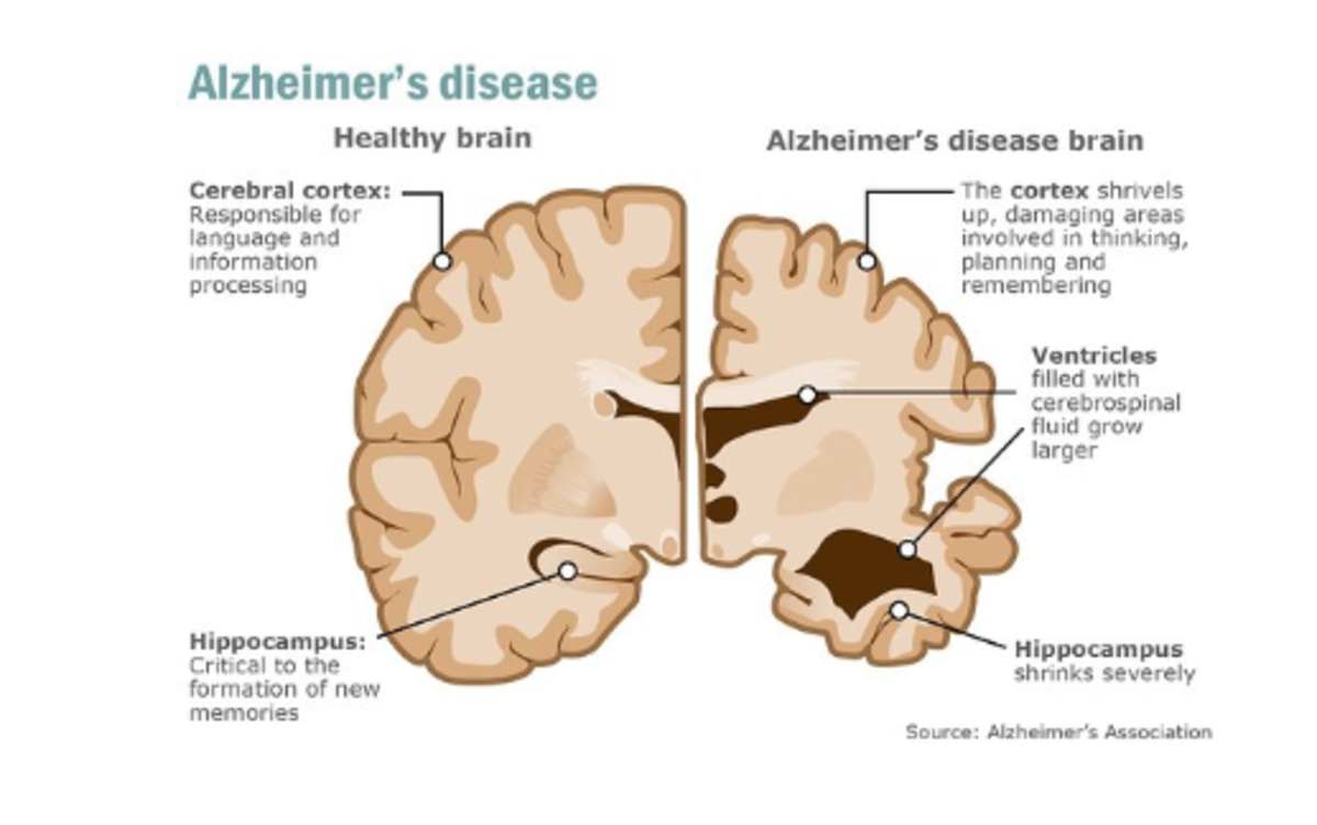 Can an Antibody Help Anybody With Alzheimer's?