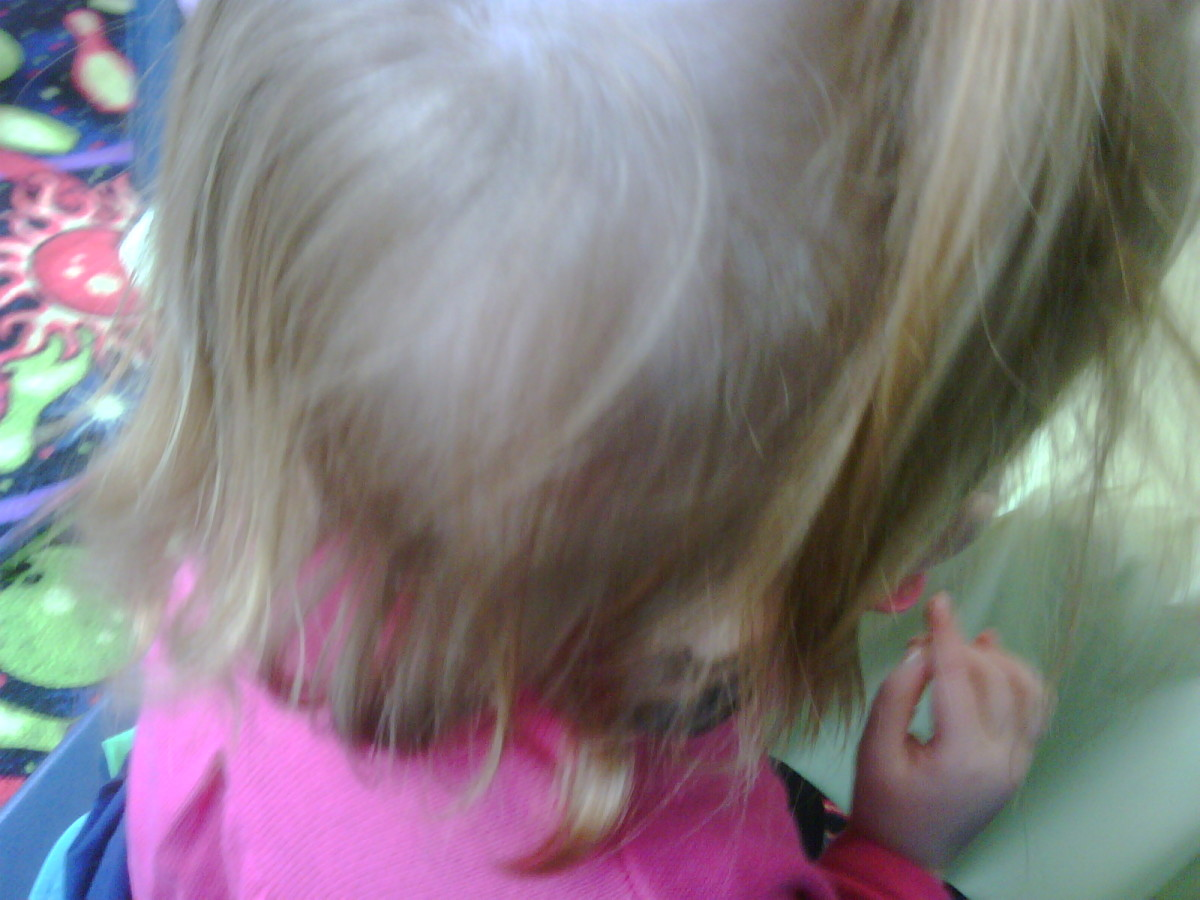 At a distance, other hair covers the spot, but makes her hair look patchy.