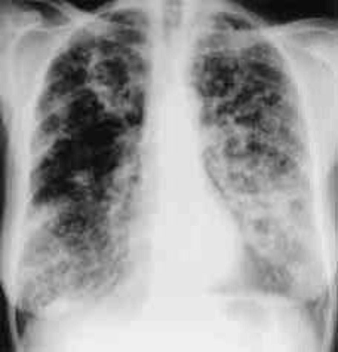 Lung disease results from clogging of the airways due to mucus build-up, decreased mucociliary clearance, and resulting inflammation. Inflammation and infection cause injury and structural changes to the lungs, leading to a variety of symptom