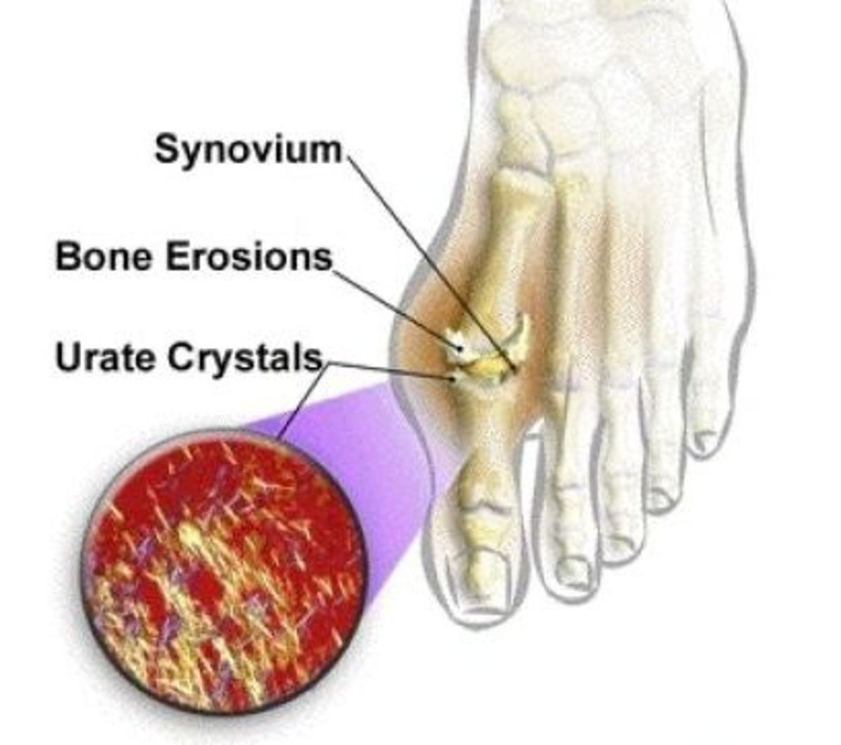 What is Gout? Gout Stages, Causes, Symptoms, Diagnosis and Treatments