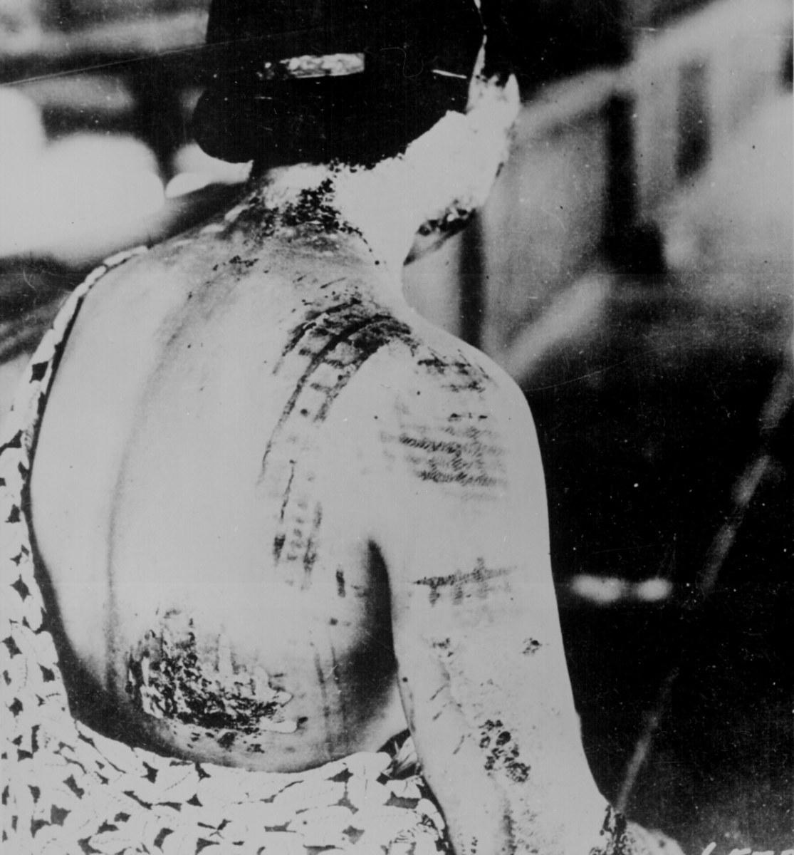 Kimono print's pattern blasted into the skin of a victim.