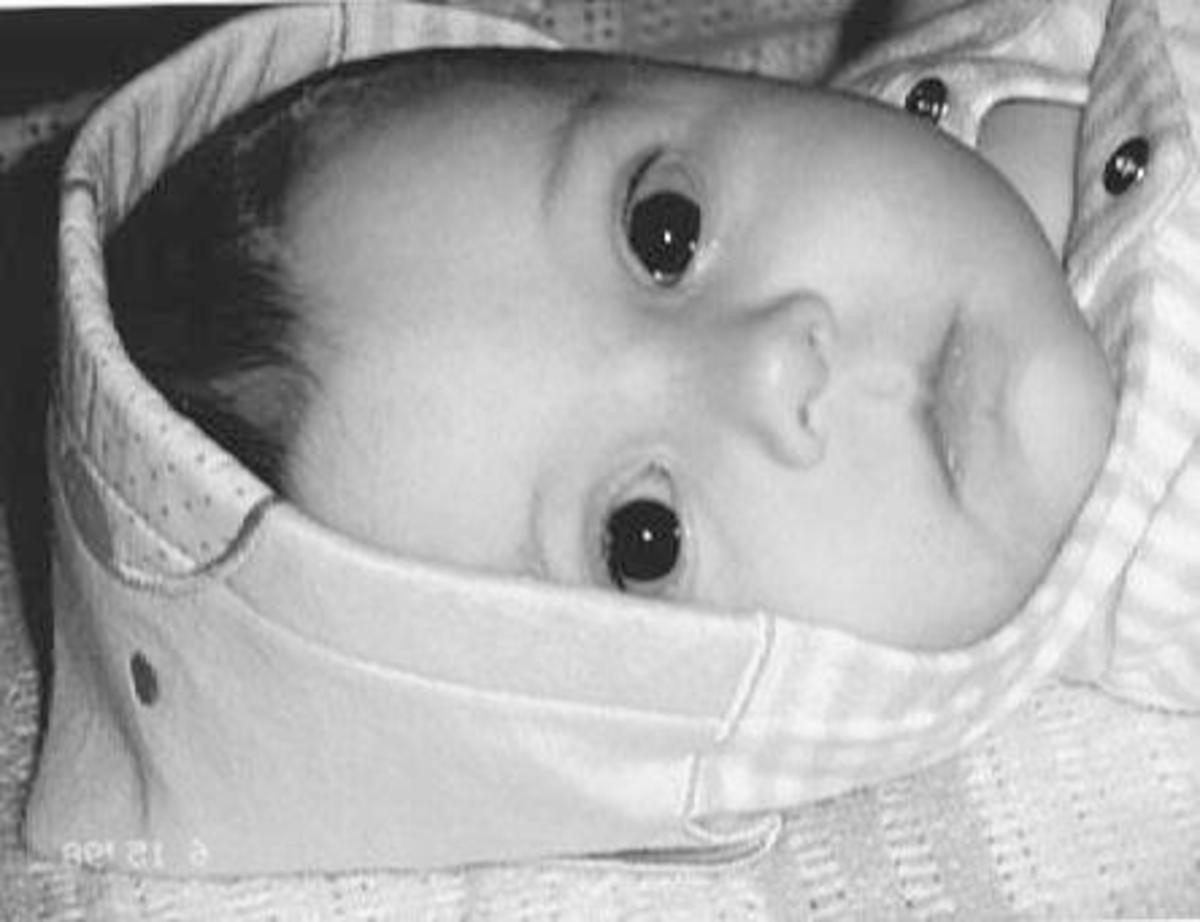 The Horror of Toxoplasmosis Gondii Parasite In Pregancy. Our beautiful granddaughter.
