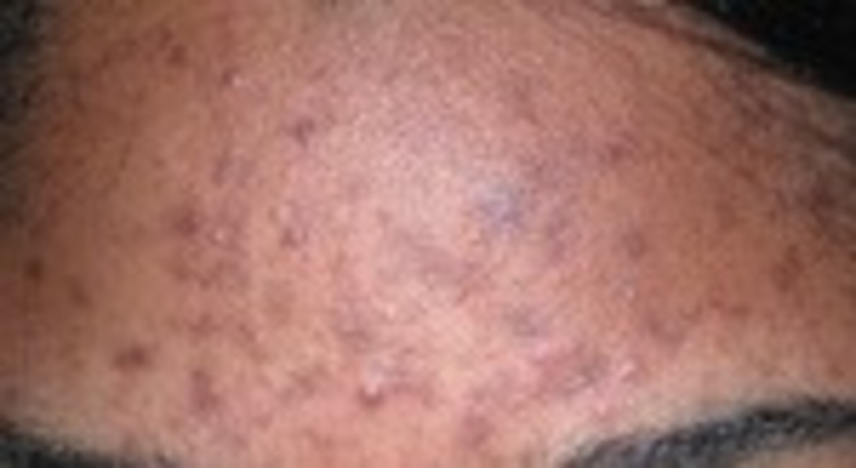 what-is-acne-and-how-is-it-caused
