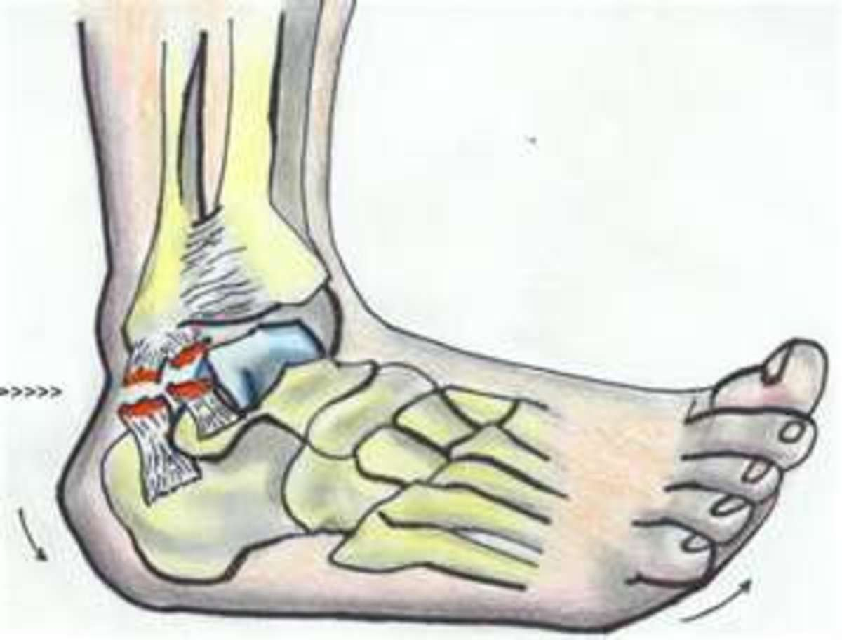Torn Ligaments in Ankle, Swelling and Bruising Pictures and How to Heal a Sprained Ankle