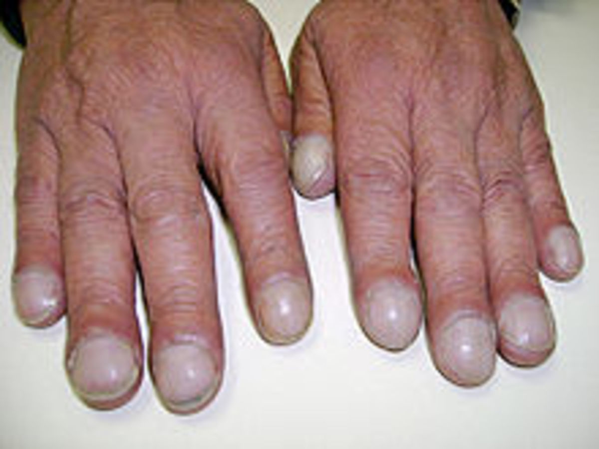 hands showing typical finger clubbing