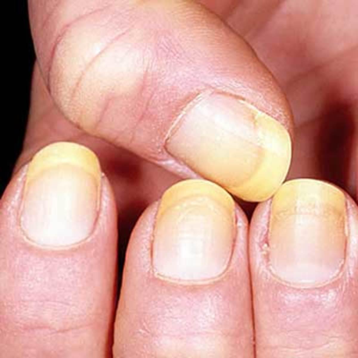 yellowish nails