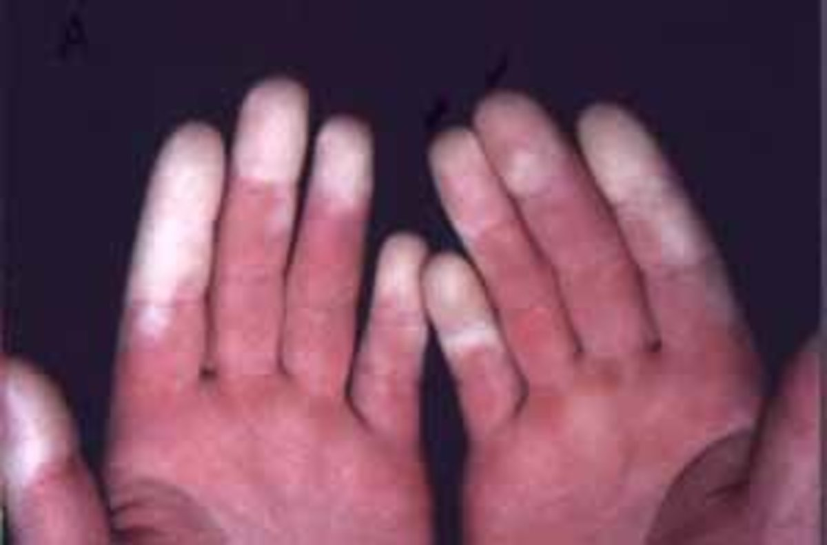 Fingers can turn white or blue with Raynaud's Disease.