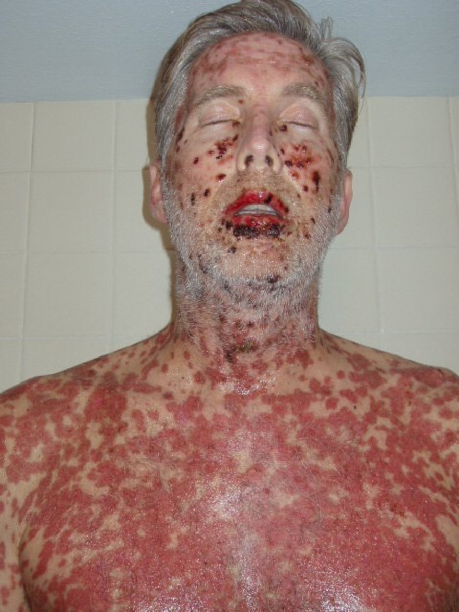 SJS can cause open sores from popped welts coming from the inside to the surface. Many patients end up in a burn unit.  Children are put in a drug induced coma because of the pain. My sister said I looked like a corpse. (copyright laws apply)