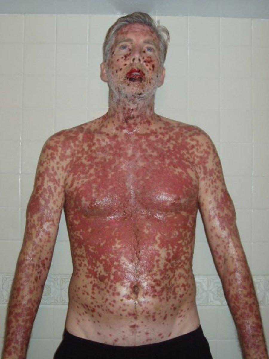 EVERYTHING hurt. Those are painful chemical burns from the inside out. 2 weeks into SJS/TENS ,    note: (declaration: pictures, story and name are copyright ownership by the author Dan W. Miller aka The Vanilla Godzilla.)