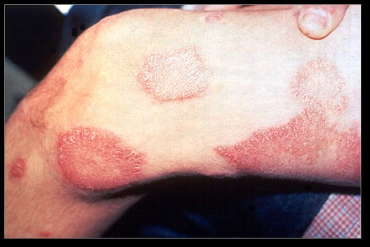 Leg lesions - Hansen's Disease - Leprosy