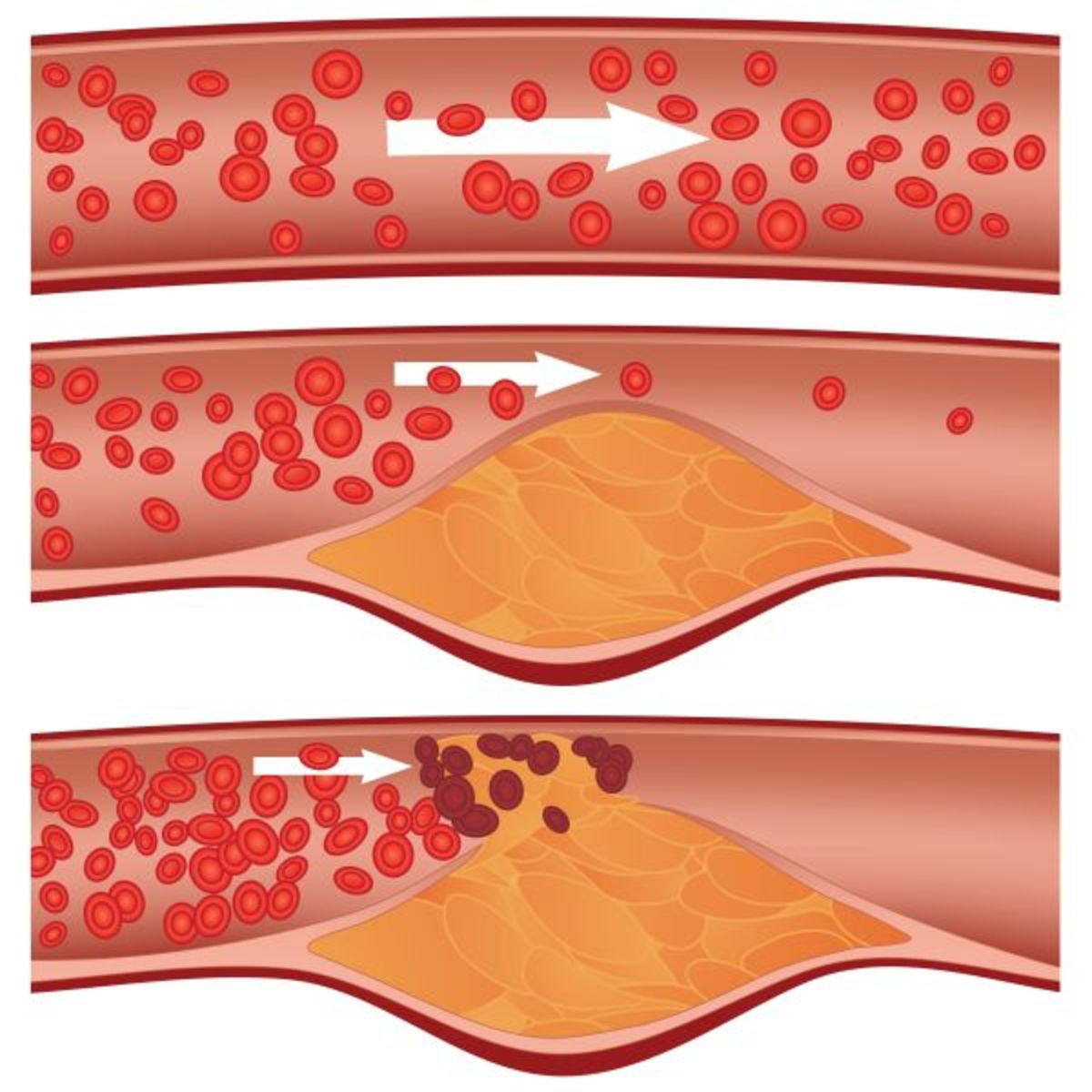 Diagram showing the formation of atherosclerosis