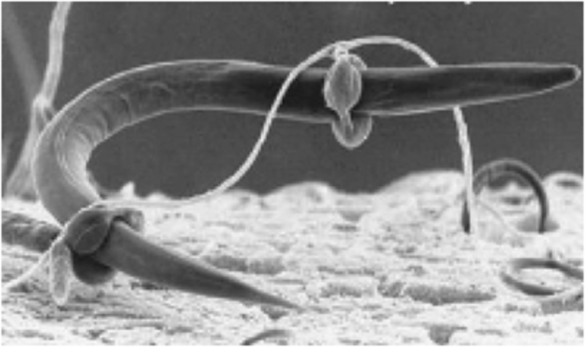 Nematode captured by swollen rings (an active trap) of a carnivorous fungus.
