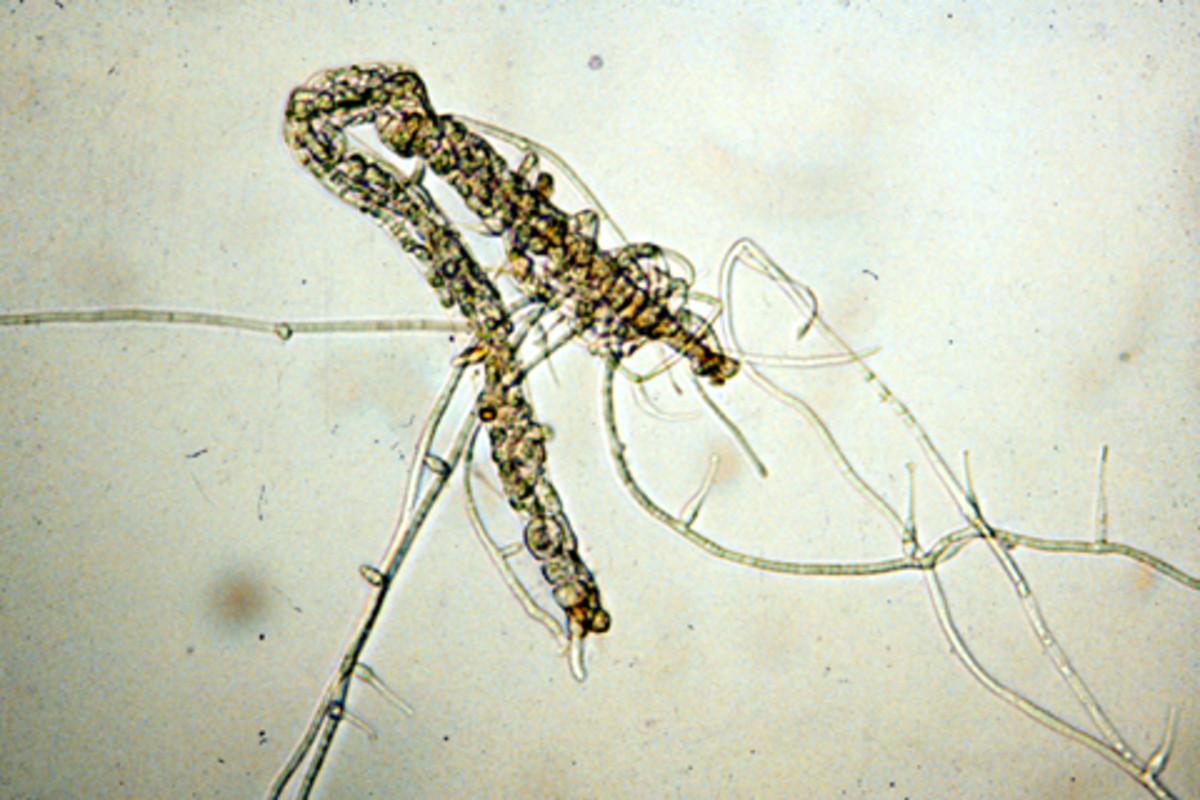 Nematophagous fungus colonizing a root-knot nematode.