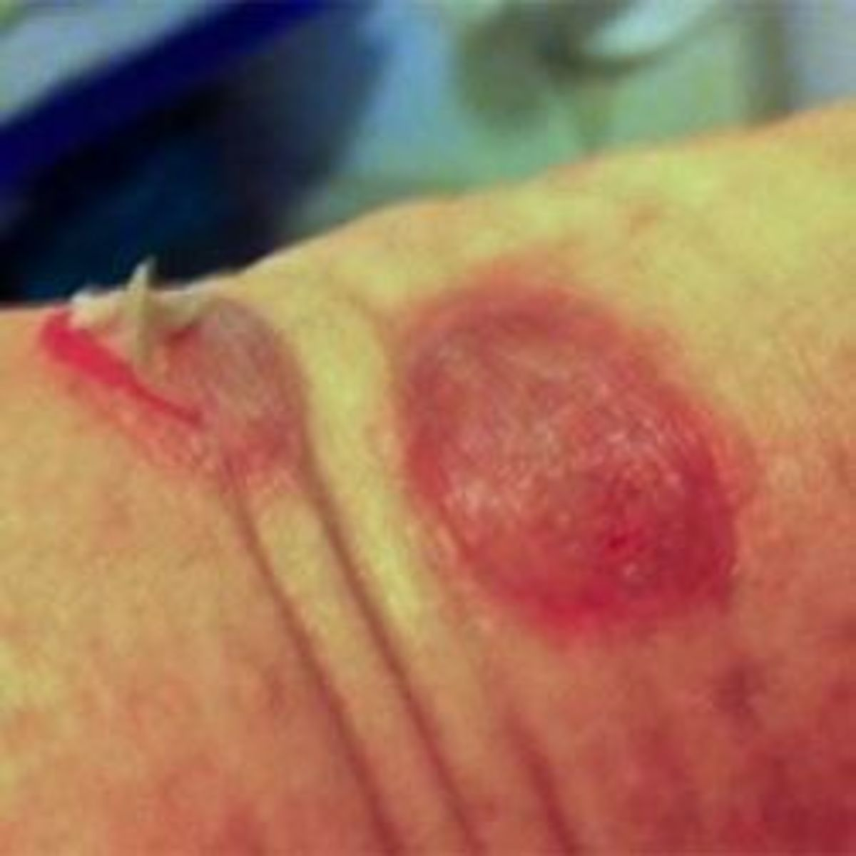 Photo of  Draining Bulbous Blister  on Wrist