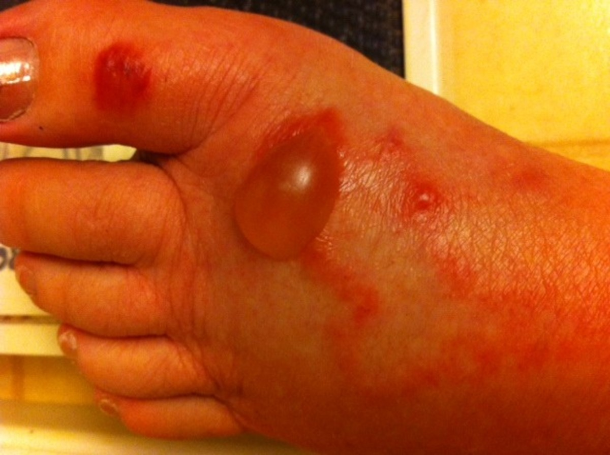Bullous Blister on Foot During Worst of Outbreak