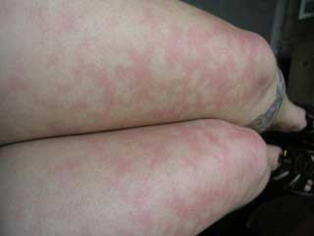 Red skin patches on legs