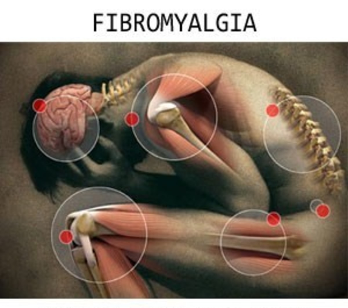 Medical research on vitamins and minerals used to treat Fibromyalgia