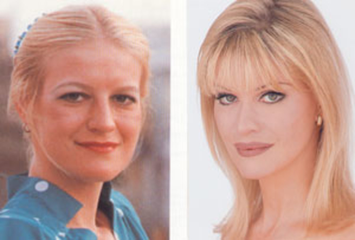 before-and-after-celebrity-plastic-surgery-the-extreme-the-beautiful