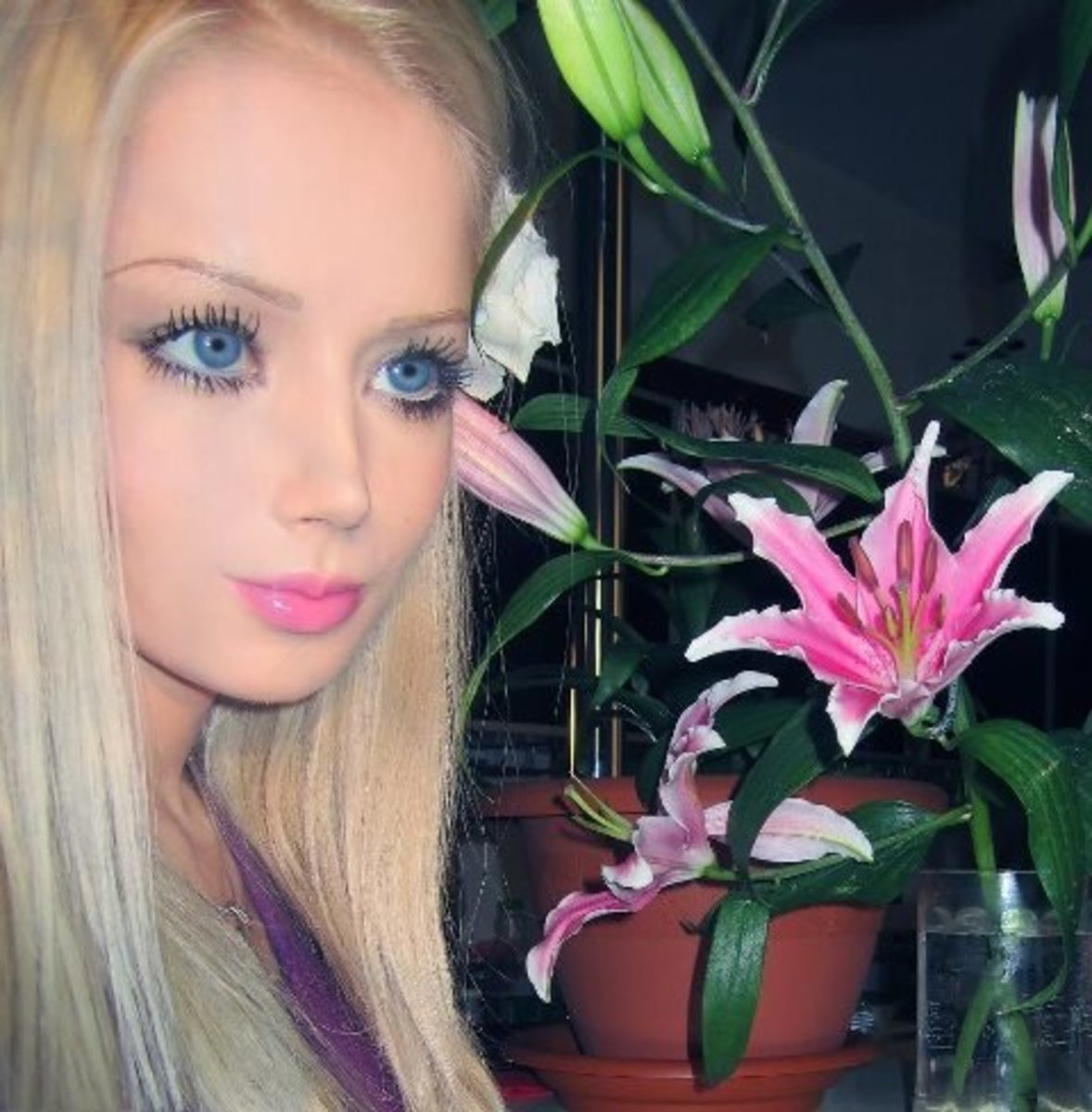 Extreme Plastic Surgery. The Human Barbie