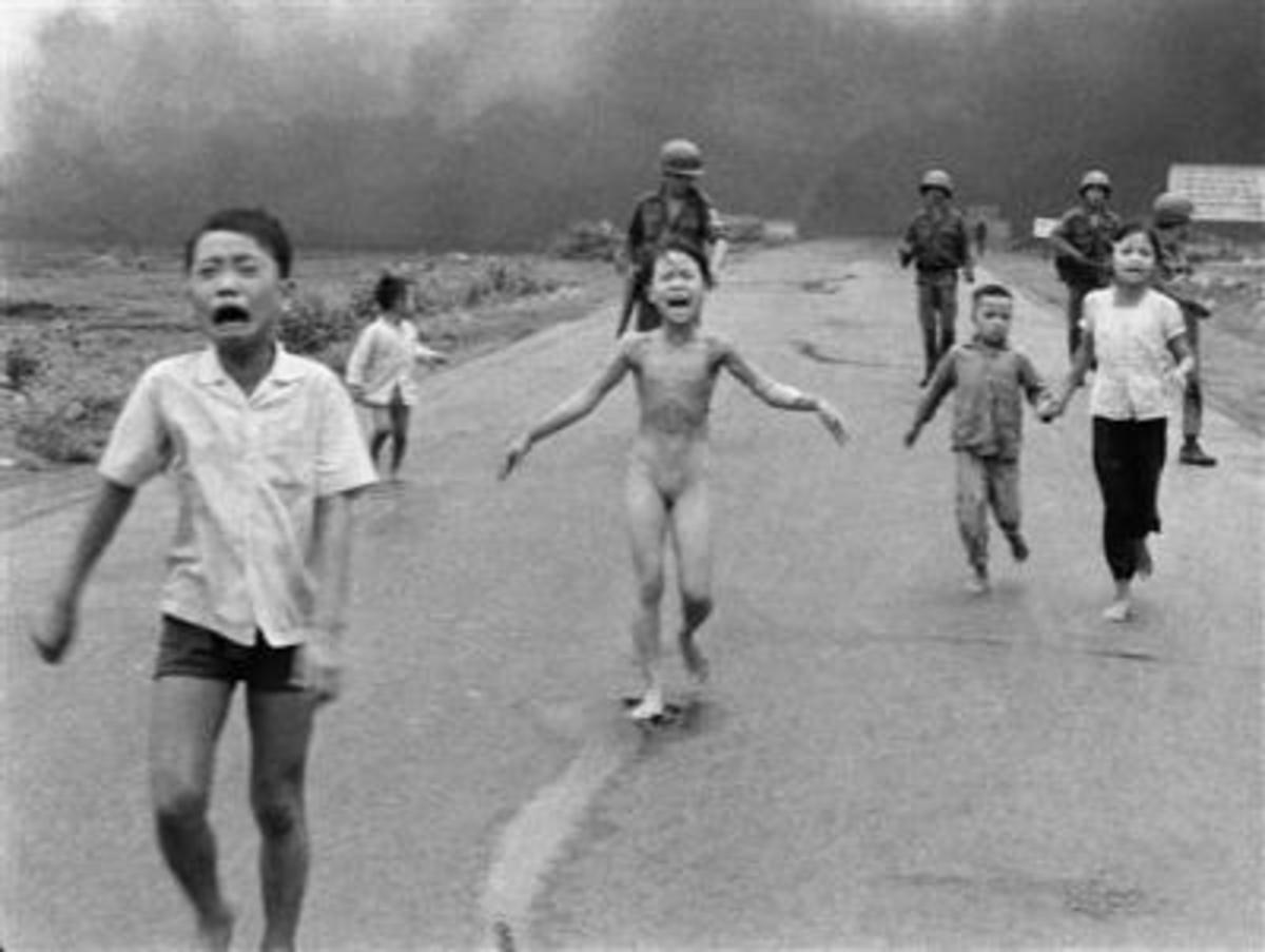 The 'Napalm Girl'  from the Vietnam War