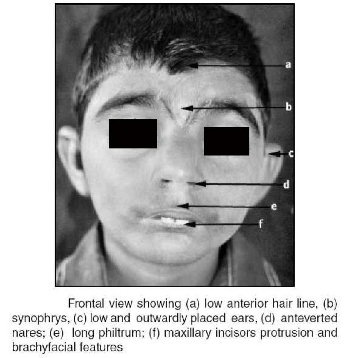 Cornelia de Lange Syndrome - Pictures, Symptoms, Life Expectancy ...