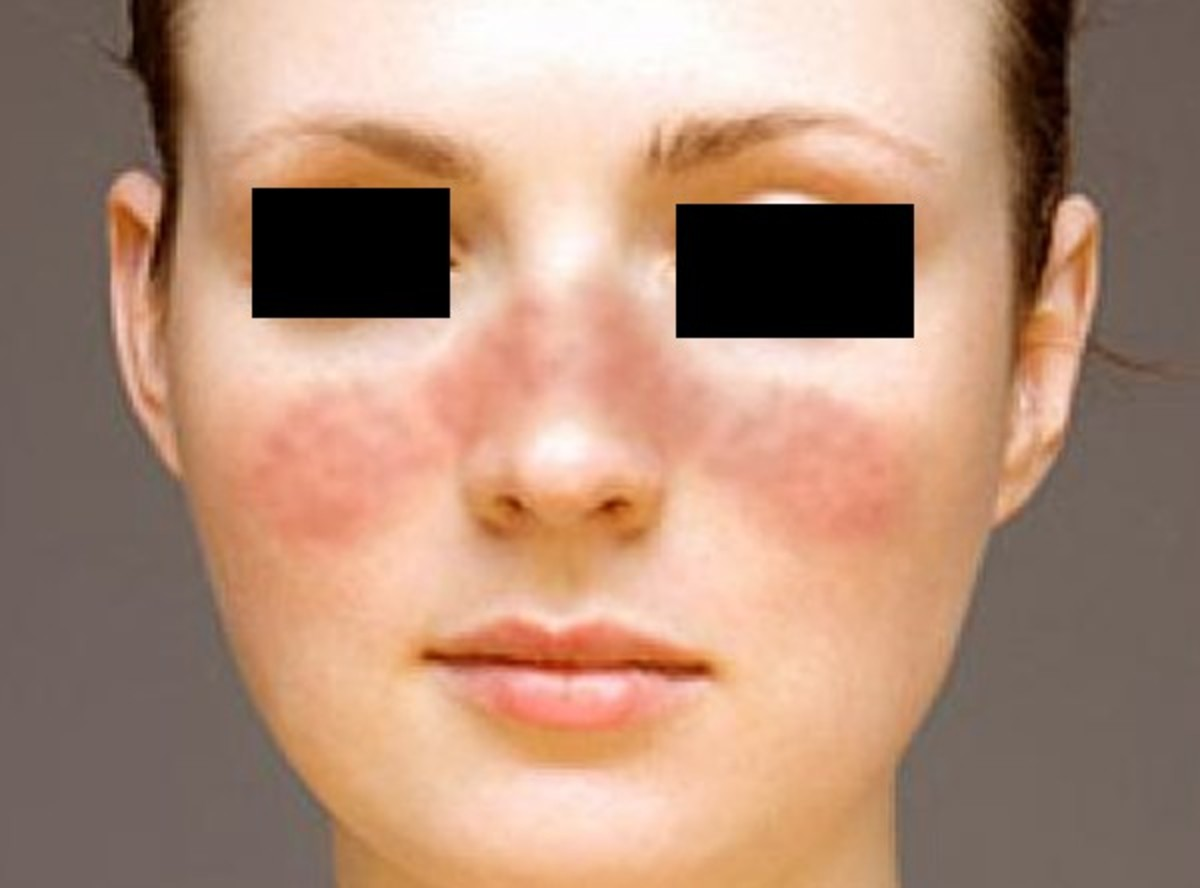 Butterfly Rash (Malar Rash) - Pictures, Treatment, Symptoms, Causes