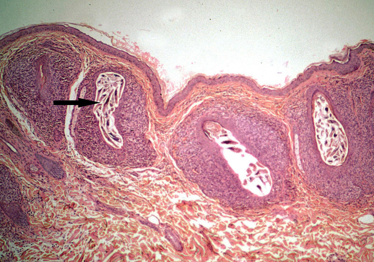 Demodex mite encased in skin follicle