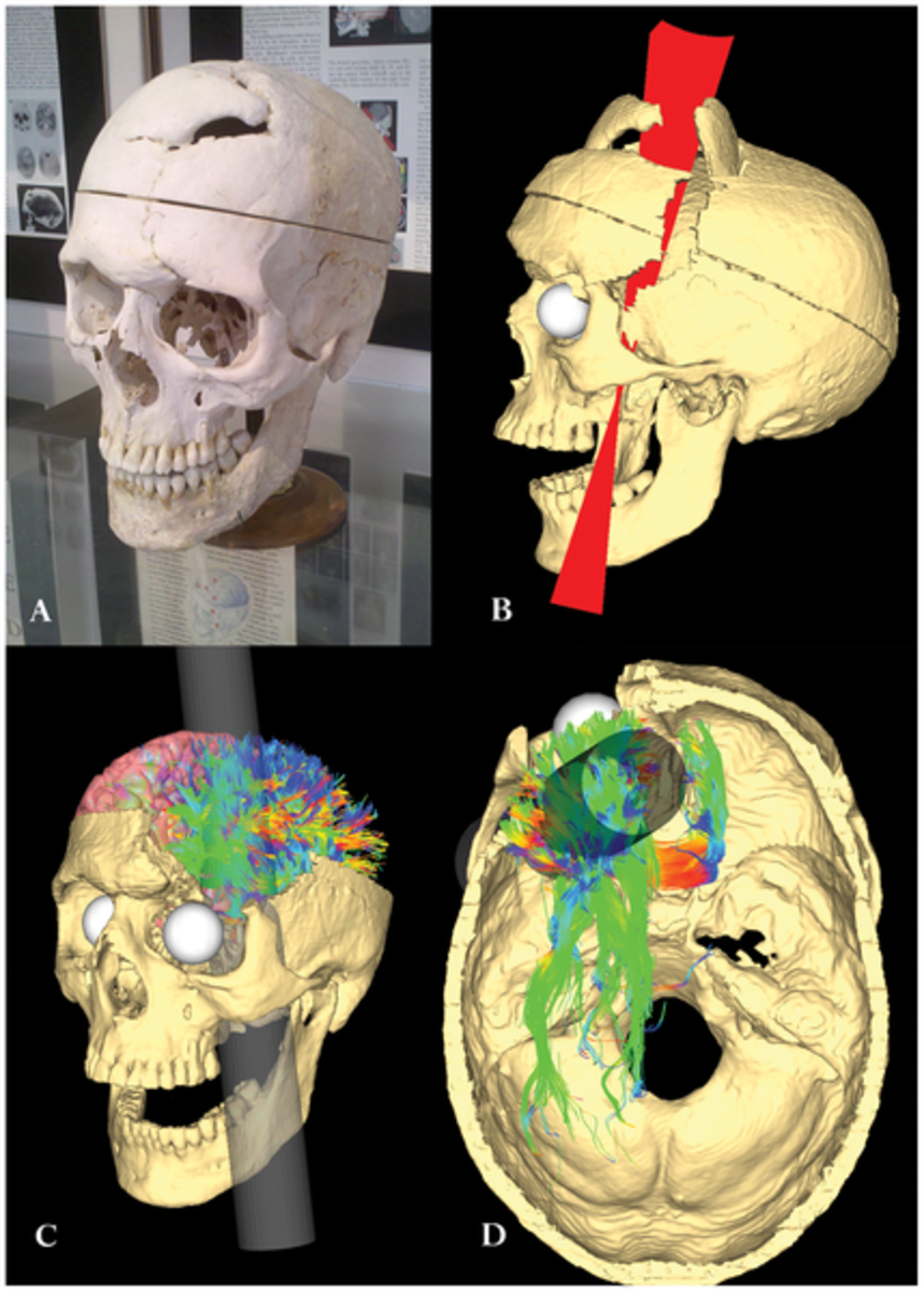 The skull of Phineas Gage alongside digital recreations of his injuries