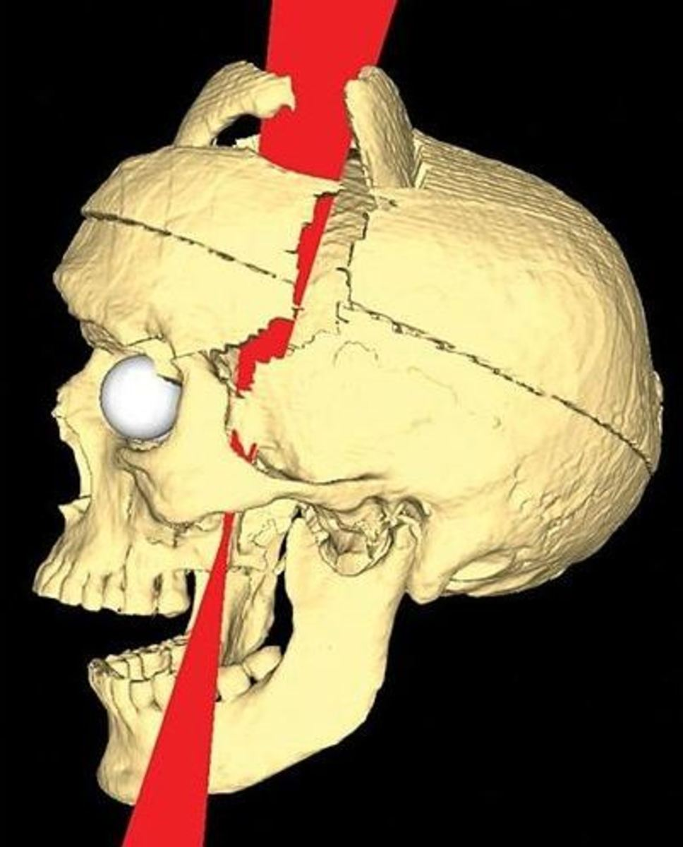 The brain injury of Phineas Gage suffered in 1848 in a terrible accident.  Gage recovered from his injury but he experienced dramatic psychological changes
