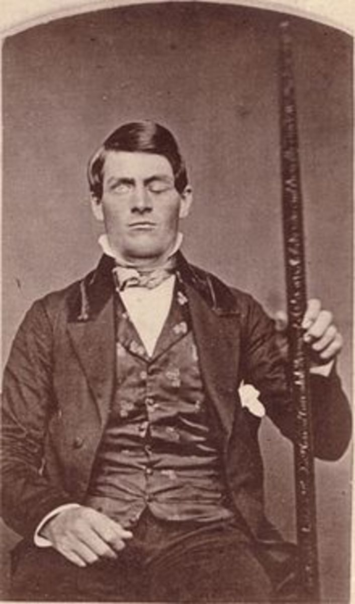 The second known portrait of Phineas Gage after he had recovered from his injuries