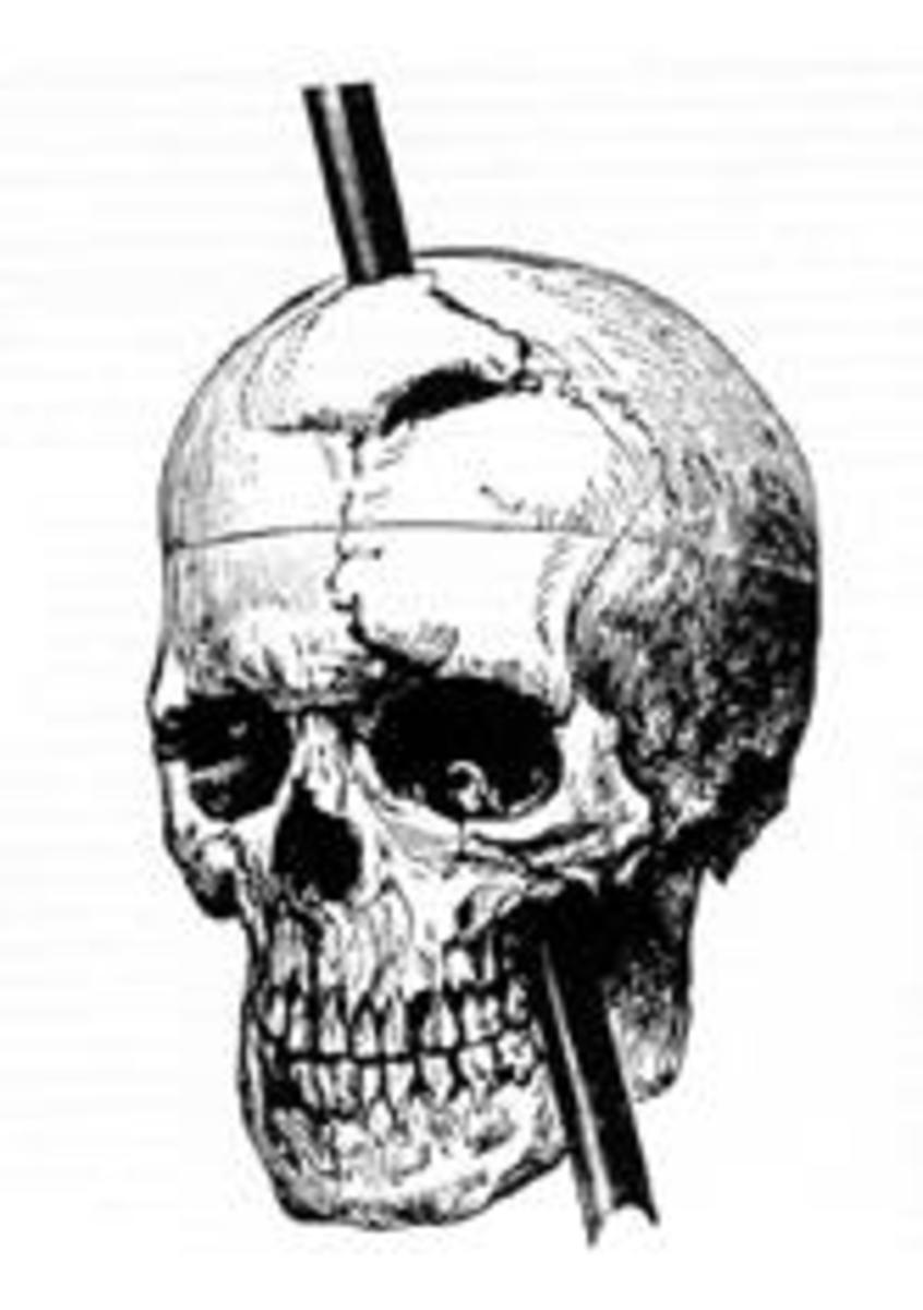 Phineas Gage Skull Diagram illustrating the trajectory of the iron bar