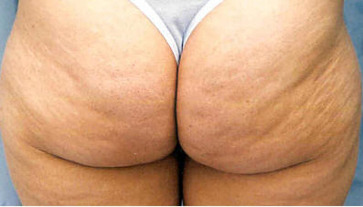 6-days-a-week-in-the-gym-but-still-wobbly-buttocks